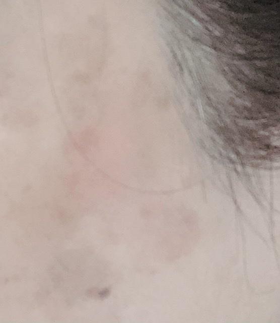 レーザー照射後、かさぶたが剥がれた後の写真